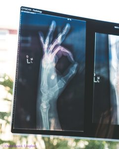 Photo of a hand through x-ray